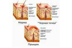 chernye_tochki_na_nosu_v_domashnix_usloviyax_1