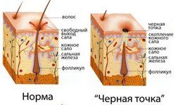 glavnye_prichiny_chernyx_tochek_na_nosu_3